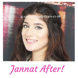 jannat - straight teeth braces patient